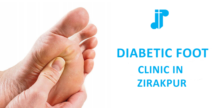 Diabetic Foot Clinic Zirakpur